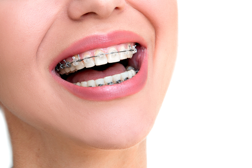 orthodontic treatments to better your smile fort worth tx