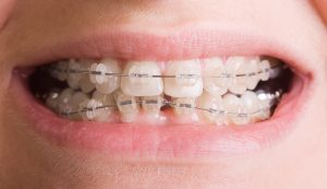 why choose tooth-colored brackets