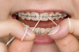 preventing gum disease with braces
