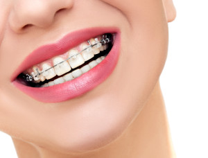 cabal orthodontic