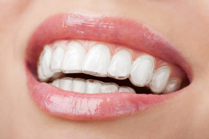 Your Questions About Orthodontics Answered