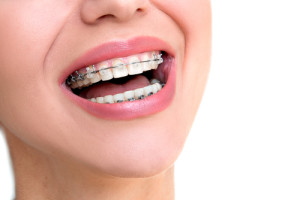 Orthodontic Treatments to Better Your Smile