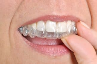 What Are Invisalign Buttons?