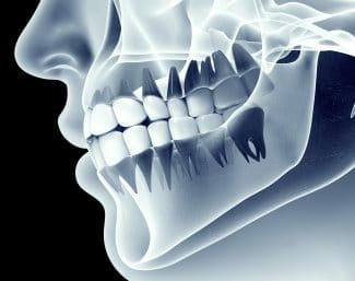 Teeth-Grinding's Effects On Your Jaw