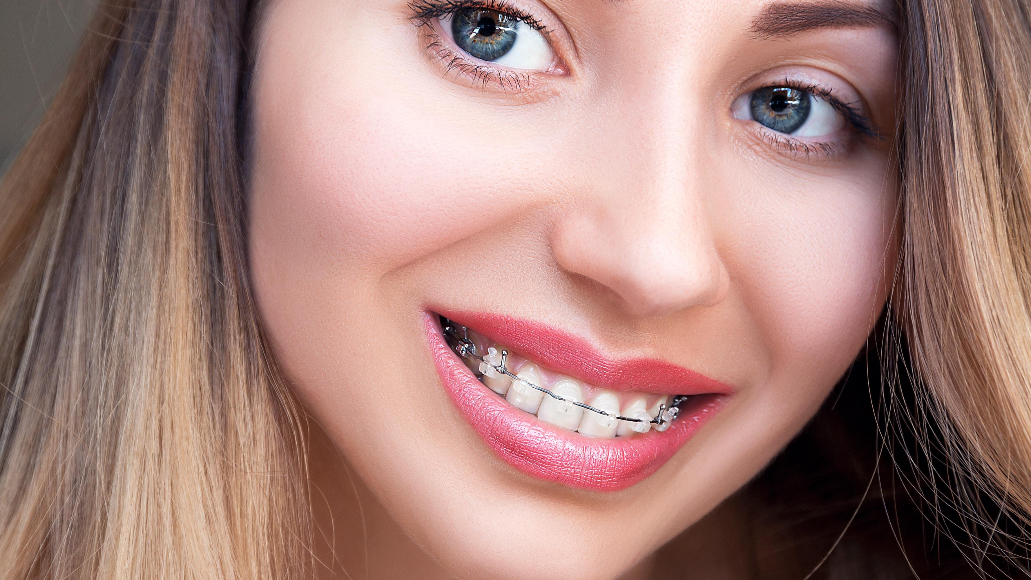 shannon-braces