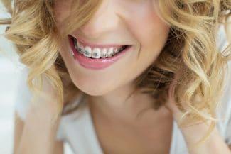 propel accelerated orthodontics