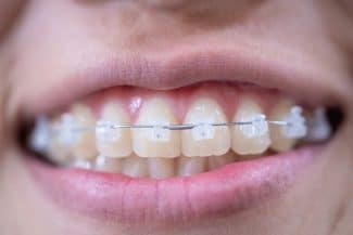 tooth-colored ceramic brackets