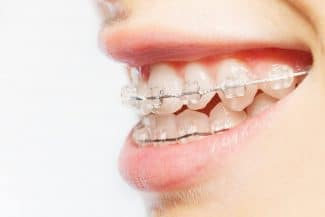 tooth-colored brackets