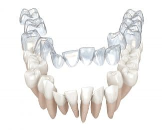 fort worth invisalign itero