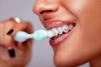 fort worth oral hygiene with braces