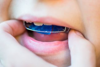 fort worth interceptive orthodontics