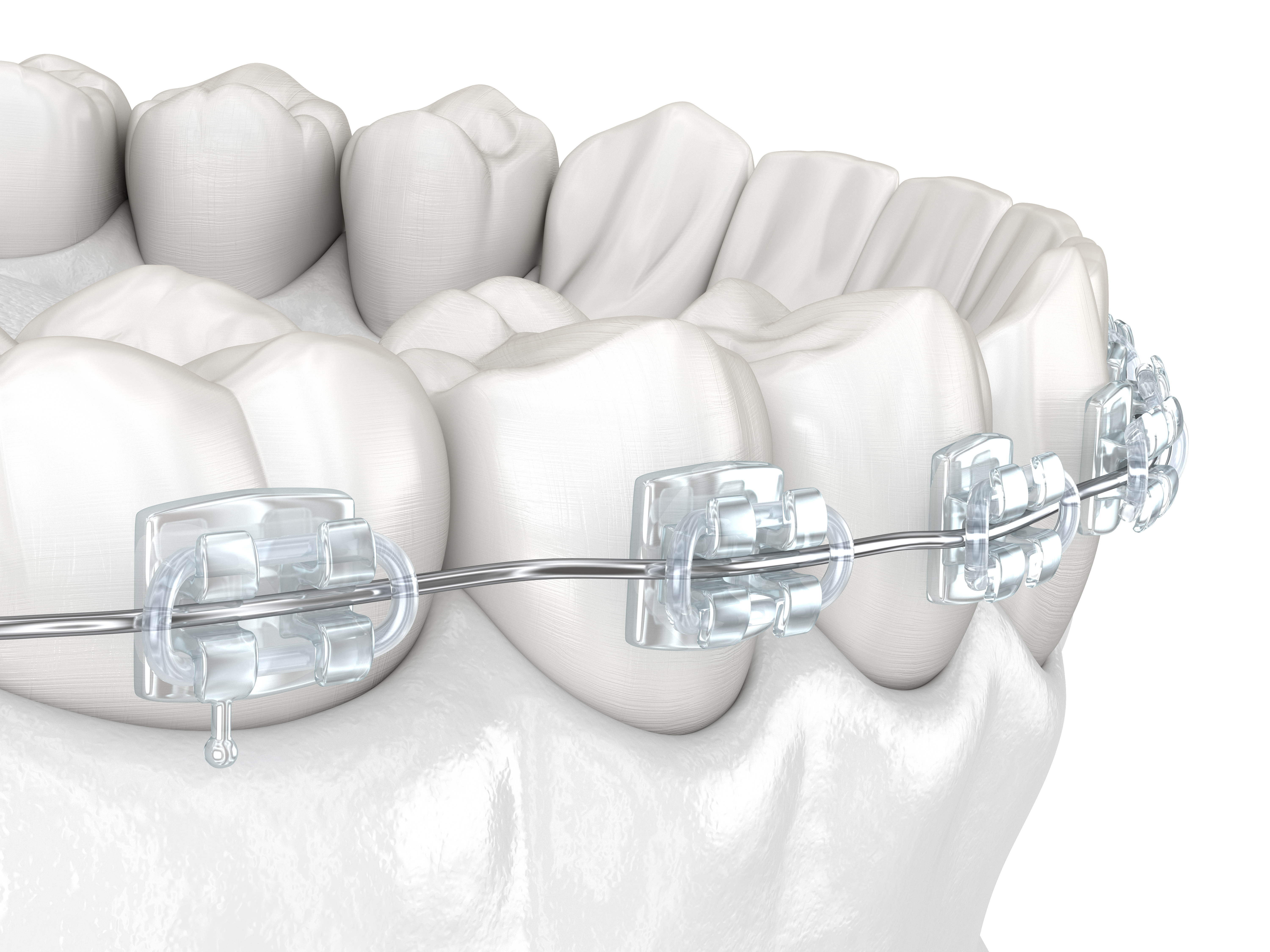 fort worth tooth colored brackets