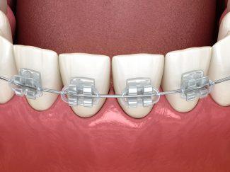 fort worth clear orthodontics