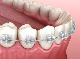 fort worth modern teen braces