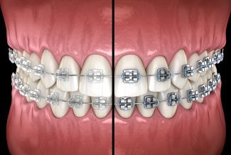 fort worth cosmetic braces