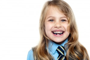 Young girls with early orthodontics