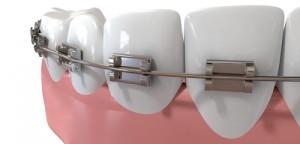 orthodonticemergency
